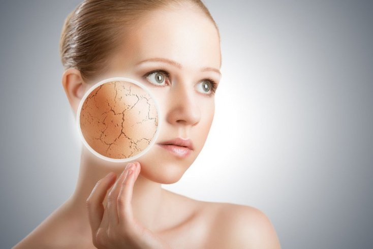 Причины шелушения кожи и профилактика