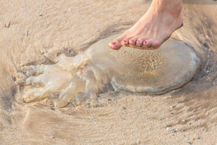 Ожоги из-за медуз: симптомы