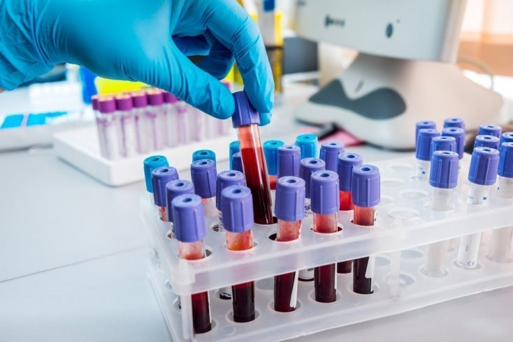 Диагностика: биохимия крови