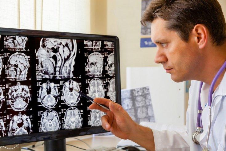 Можно ли вылечиться от туберозного склероза?