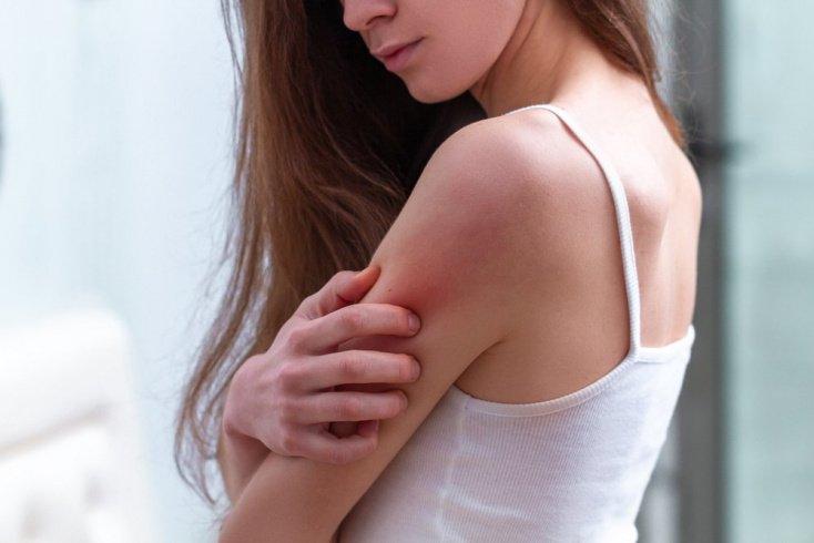 Психосоматика: возможные причины псориаза
