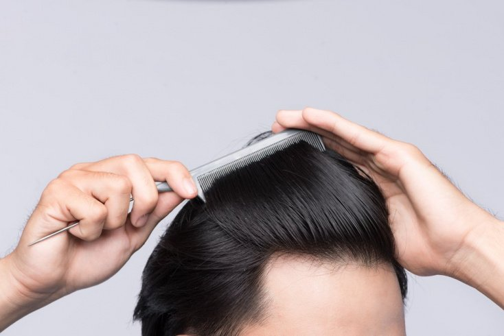 Выпадение волос: возможные причины
