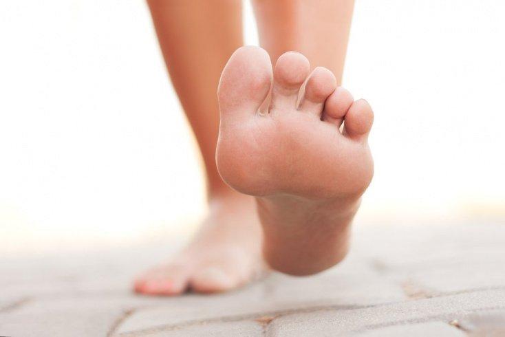 Миф 5: Вросший ноготь не связан с плоскостопием