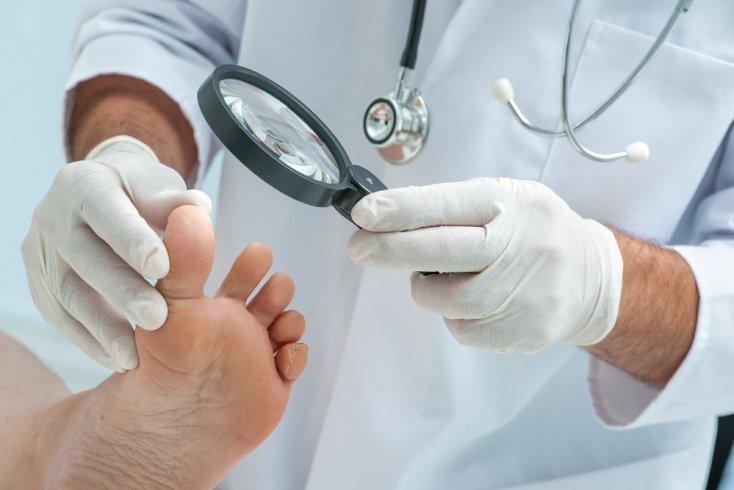 Бородавки на ногах: особенности проявлений