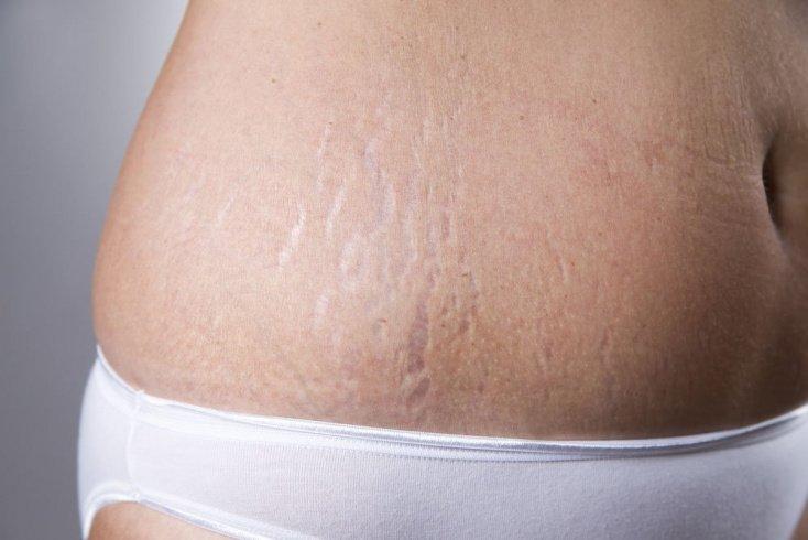 Что такое растяжки, и каковы причины их образования на коже человека?